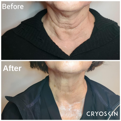 CryoFacial - neck tightening, photo credit @aesthetics_by_sophia.png