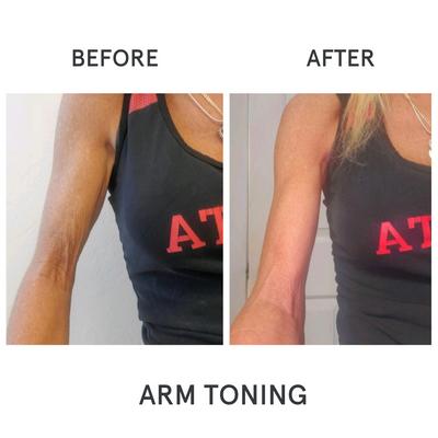 Arm Toning B&A.png