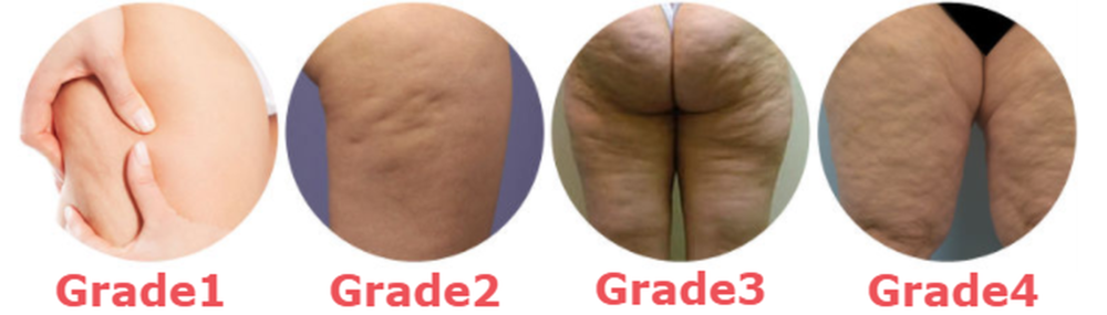 different+grades+of+cellulite.png