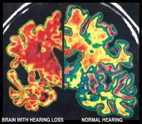 Brain-Hearing-Loss-5910d238b9e42.jpg