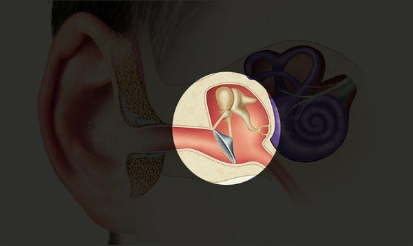 middle-ear-606def3d60e89.jpg