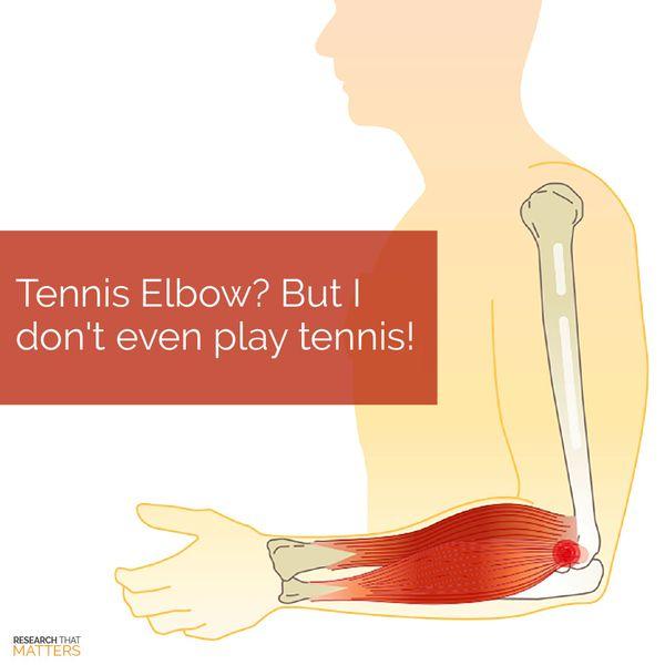 (JUL) Week 4 - Tennis Elbow - But I Dont Even Play Tennis.jpg