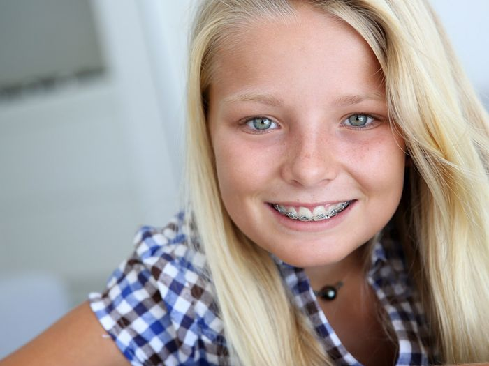 smiling blond teenager with braces