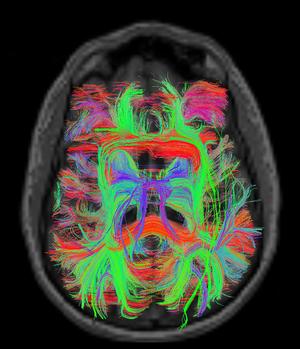 Neuro-Imaging-MIND-MB-Ramiro-Salas-PHD-Baylor-College-of-Medicine-Houston-TX-5ce2de94d3ee4.png