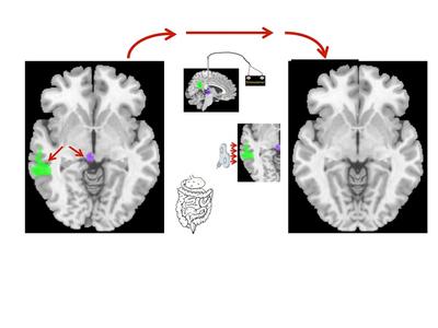 MIND-MB-brain-stim-for-website-v6-USE-THIS-5ce2de8e4926e.jpg