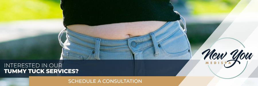 INTERESTED IN OUR Abdominoplasty .jpg