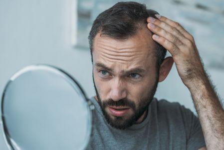 Receding-Hairline.jpg