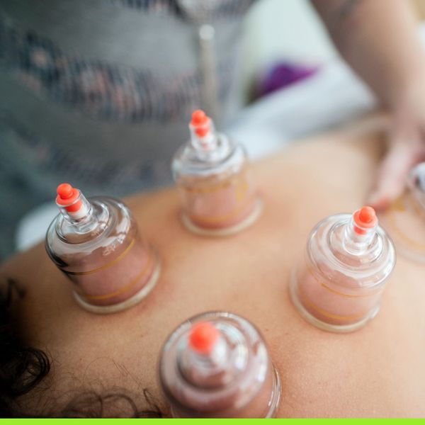 Cupping on back