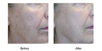 Before and After image of photo rejuvenation