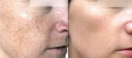 Image of face before and after treatment