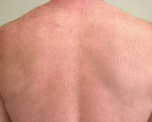 Image of Back after laser hair removal treatment