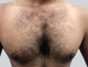 Image of chest before laser hair removal treatment