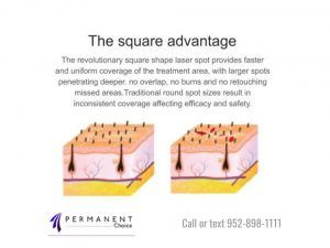 Diagram of the square advantage