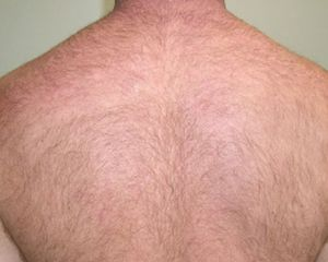 Image of Back before laser hair removal treatment