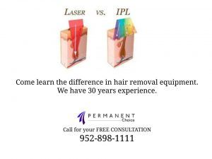 Diagram showing the difference between Laser vs IPL