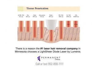 Diagram of Tissue Penetration during Laser Hair Removal