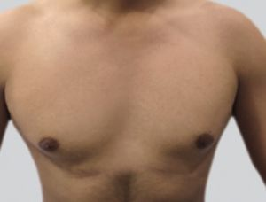 Image of chest after laser hair removal treatment