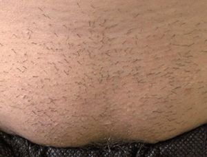 Image of lower abdomen before laser hair removal treatment