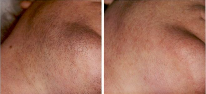 Before and after image of laser hair removal treatment