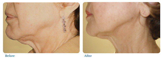 Before and after image of skin tightening