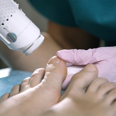 An image of someone undergoing laser nail treatment