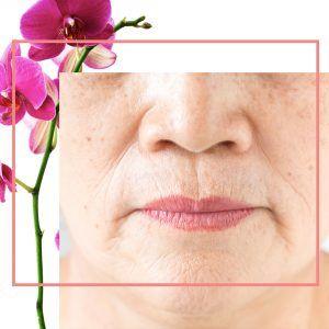 Aging-Skin-600b1fadb23d9-300x300.jpg