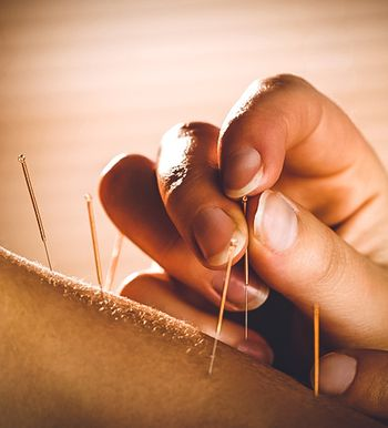 Acupuncture on skin