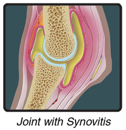 Diagram of Joint with Synovitis
