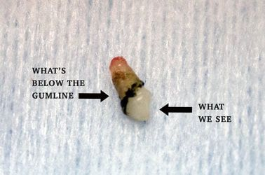 Image of Canine Tooth