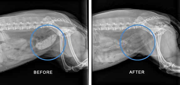 x-ray of bladder stones before and after