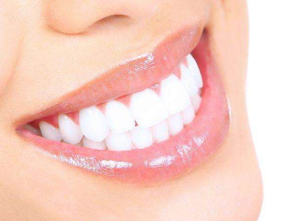 Dental-Whitening-5b69b2584db91.jpg