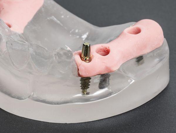 Dental-Implants-5b69b2f7d42b2.jpg