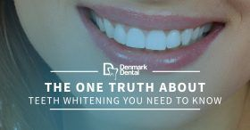 The-One-Truth-About-Teeth-Whitening-You-Need-To-Know-5b92eb5d2c279-280x146.jpg