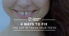 4-Ways-To-Fix-The-Gap-Between-Your-Teeth-5c2548f36f4dd-280x146.jpg
