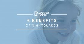 BlogBeauty-DenmarkDental-6NightguardBenefits-599b44d92878d-280x147.jpg