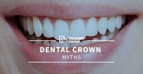 Dental-Crown-Myths-5cab88e676bd0-280x146.jpg