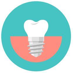 Dental-Implants-Icon-5b69b2f5e692e.jpg