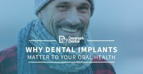 Why-Dental-Implants-Matter-To-Your-Oral-Health-5c25497cc8741-280x146.jpg