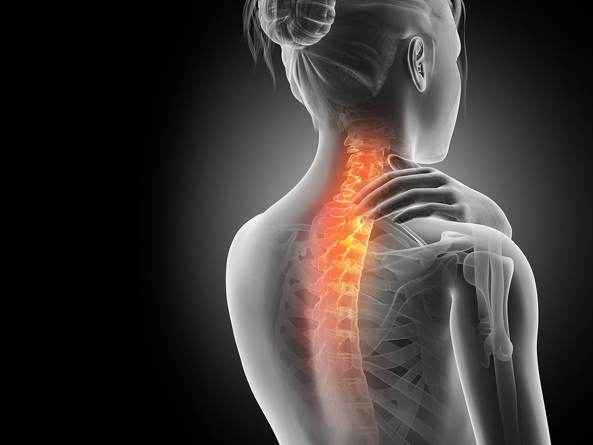 X-ray of woman experiencing pain in her neck.