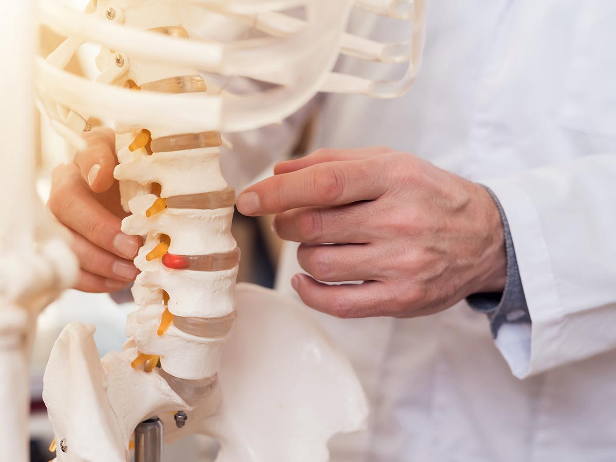 Doctor pointing to a vertebrae in a skeletal model.