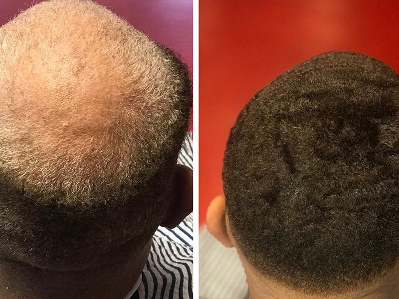 Before and after photo of the back of a man's head with a man unit.