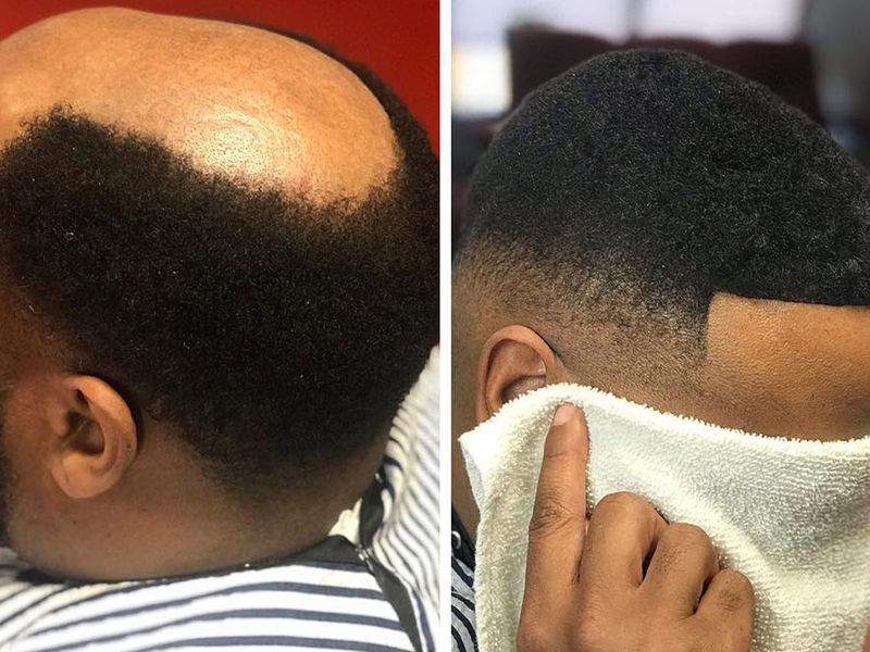 Before and after of a man with a man unit.
