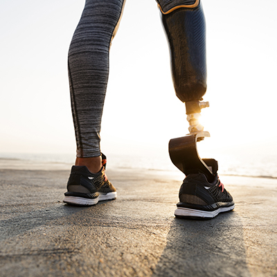 Image of a woman with a prosthetic leg