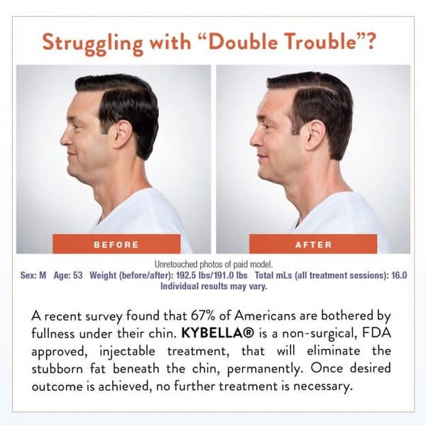 kybella-before-and-after-624x622.jpg