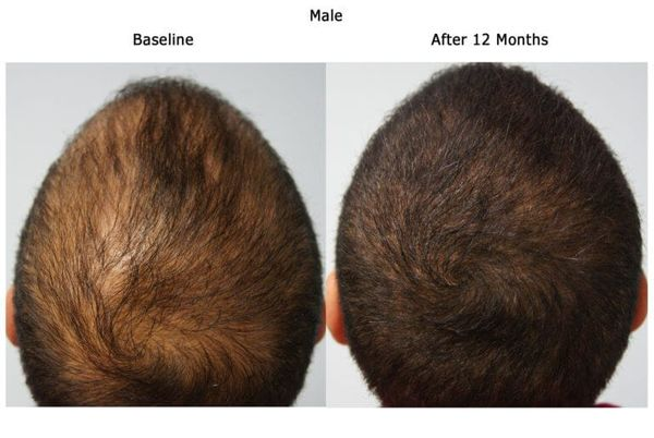Male-Before-After-12-months-768x515.jpg