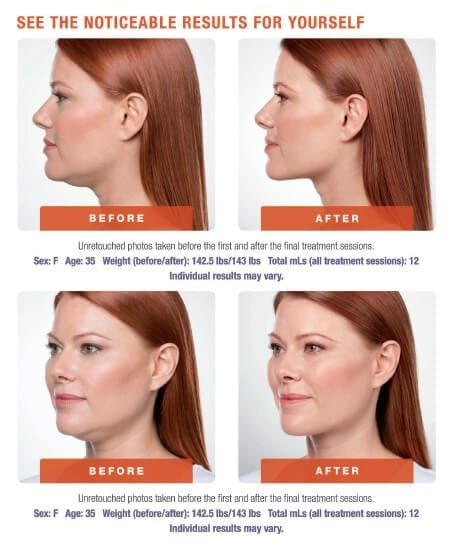 kybella-before-and-after-female.jpg
