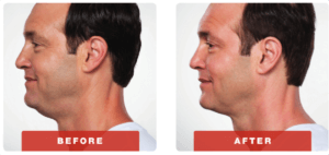 kybella-before-adn-after-2-300x142.png